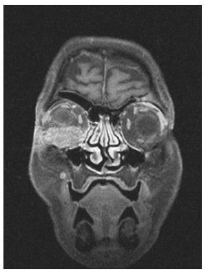 Obr. 1. MR vyšetření očnic, expanze v oblasti spodiny pravé očnice. T1 vážená sekvence s potlačením tuku po aplikaci paramagnetické kontrastní látky v koronální rovině. Přístroj Symphony – Siemens 1,5 T. (Poskytnuto MUDr. J. Hrbkem, Radiologická klinika, FN Olomouc).