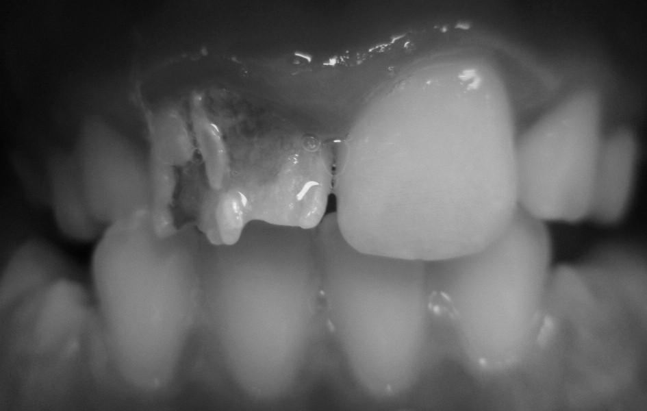 Hypoplazie skloviny s malformací korunky.