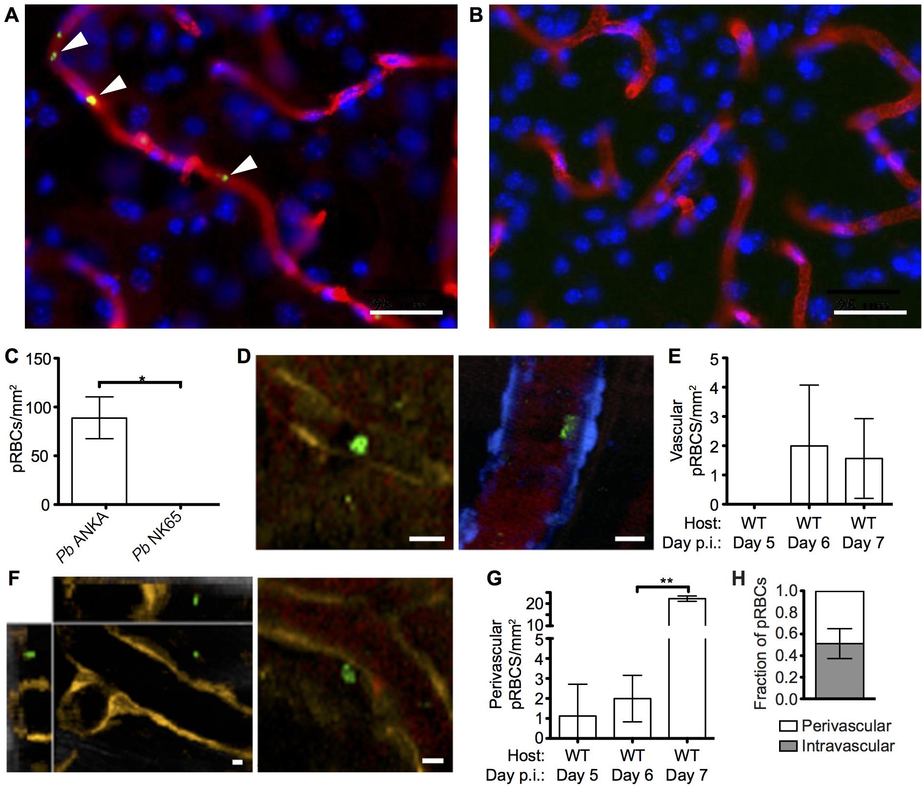 pRBCs make transient adhesive contact with endothelial cells and are deposited within the perivascular space of the meninges of mice with ECM.