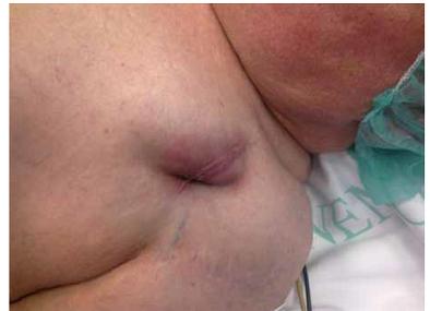 Lokální zánět v kapse kardiostimulátoru.