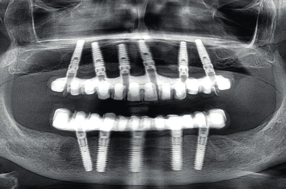 Disparalelní implantáty