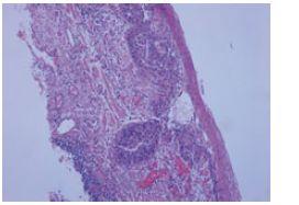 Histologický nález, barvení hematoxylin eozinem. Fig. 3. Histological finding, haematoxylin- eosin staining.