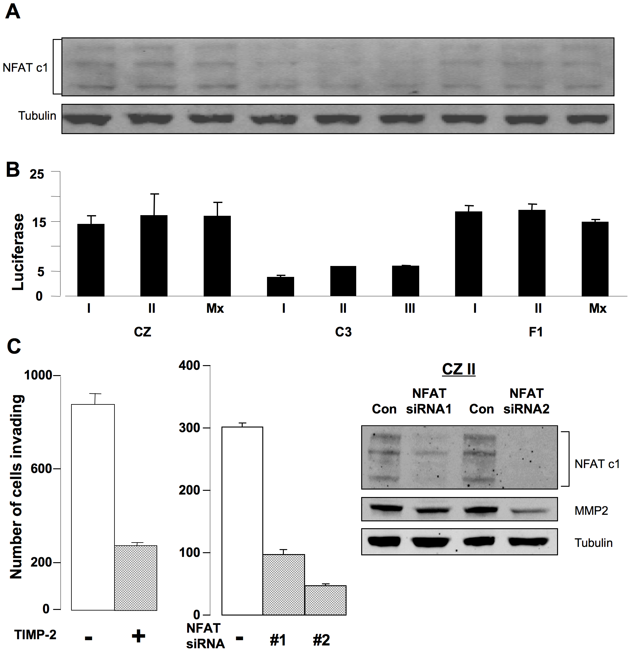 Activation of NFAT and secretion of MMP-2 are critical for invasion by metastatic bone tumor cells.