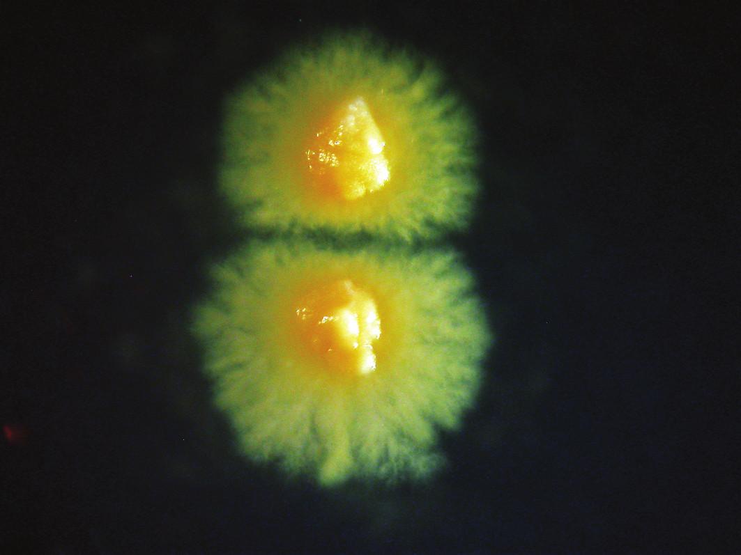 Obr. 1 [a] kokovitá morfologie v barvení podle Grama; [b] fragmentovaná vlákna,tyčky, koky N.farcinica v barvení podle Grama; [c] částečná acidorezistence N.farcinica v barvení podle Kinyouna/; [d] úplná inhibice růstu N.farcinica v okolí disků s ceftriaxonem a cefotaximem; [e] hladké kolonie N.farcinica s koronou slabě viditelného bílého aeriálního mycelia na periferii, po 3 dnech kultivace na krevním agaru, skutečná velikost do 2 mm; [f]starší hladké lesklé nažloutlé kolonie N.farcinica s vyvýšeným středem, pětidenní pasáž na krevním agaru, skutečná velikost do 3 mm.; [g]vzdušné a substrátové mycelium N.farcinica při epimikroskopickém vyšetření na bločku vodovodního agaru (tap water agar). Vláknité mikrokolonie jsou zachyceny v různých rovinách ostrosti.; [h] mohutná korona submerzního substrátového mycelia N.farcinica kolem 14 dnů staré kolonie na MH agaru  Figure 1. [a] coccoid morphology of nocardiae in the Gram stained smear of N.farcinica; [b] fragmented filaments, rods and cocci in Gram stained smear of N.farcinica; [c] partial acidoresistance of N.farcinica in modified Kinyoun stain; [d] complete growth inhibition of N.farcinica around ceftriaxon and cefotaxim discs.; [e] Smooth colonies of N.farcinica surrounded by faintly visible white aerial mycelium, after 3 day cultivation on blood agar plate (BAP), real size till 2 mm.; [f] older smooth glossy yellow-tan colonies of N.farcinica with raised central part, 5 day subculture on BAP, real size till 3 mm.; [g] aerial and substrate mycelium of N.farcinica on the tap water agar block in epimicroscopy. Filamentous microcolonies are captured in various planes of definition.