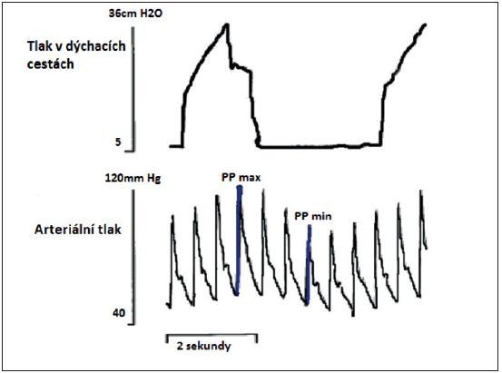 Simultánně zaznamenaná křivka tlaku v dýchacích cestách a arteriálního tlaku