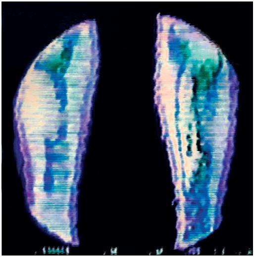 Uspořádání experimentu pro objektivizaci vlivu VCT na prokrvení léčené končetiny s využitím radionuklidu 99mTc.