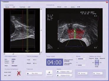 Peroperačně: trojrozměrný, transrektální ultrazvuk v reálném čase pro vizuální plánování léčby a kontrolu na kontrolním monitoru.