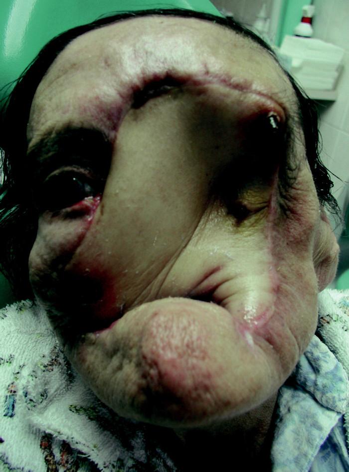 Pacientka z obr. 3 – stav po přenosu myokutánního laloku se zavedenými dentálními implantáty.