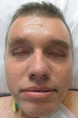 Obličej pacienta se skleredémem: mucinózní infiltrace kůže a podkožní způsobila zesílení kůže a podkoží a omezení hybnosti Omezení hybnosti kůže kolem úst výrazně ztěžovala příjem stravy. Periferní žíly nebylo možné pro ztuženost kůže napíchnout, proto byla pacientovi zavedena centrální kanyla.