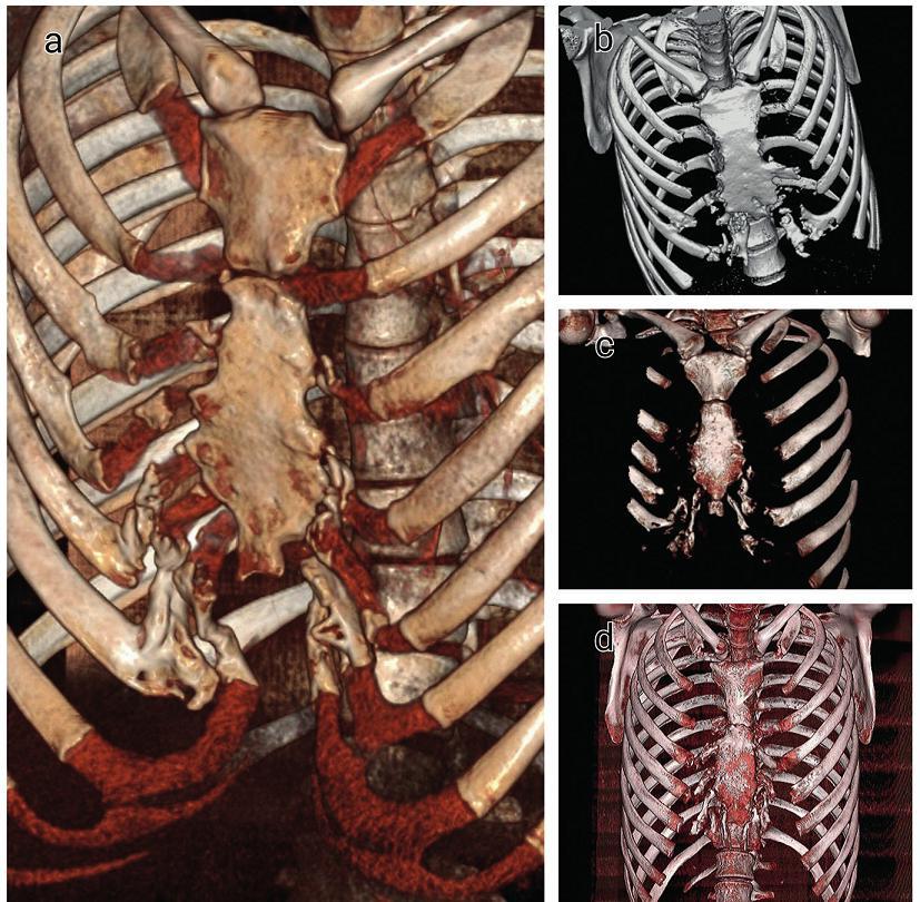 Kostná novotvorba v chrupavkách rebier u pacientov s recidívou pectus excavatum (3D-CT) Fig. 3. Ossification of the costal cartilages in patients with recurrent pectus excavatum (3D-CT reformation)