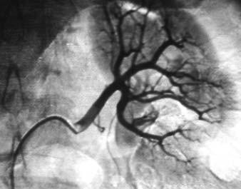 Angiografie hlavní renální tepny zásobující horní 2/3 levé ledviny.
