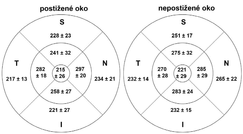 Tloušťka vrstvy nervových vláken v makule při kontrolním vyšetření nejméně za 3 měsíce po akutní atace AION v jednotlivých oblastech u postiženého a nepostiženého oka (S = superior = horní, I = inferior = dolní, N = nasal = nazální,T = temporal = temporální)