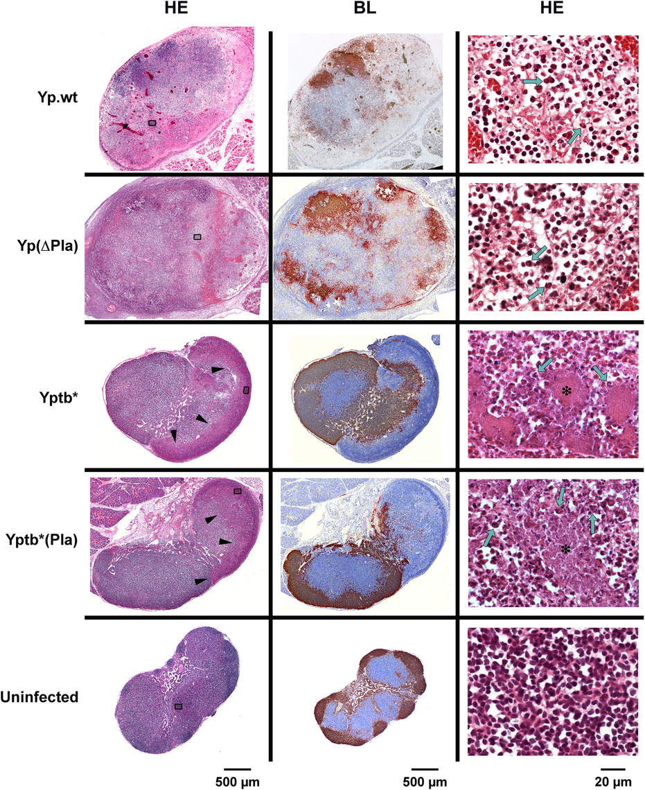 Histology of dLNs infected with <i>Y</i>. <i>pestis</i> or <i>Y</i>. <i>pseudotuberculosis</i> strains containing or not the pPla plasmid.