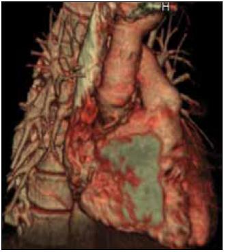 Obr. 2a. CT vyšetrenie – tvoriaca sa pseudoaneuryzma v periprotetickej oblasti.