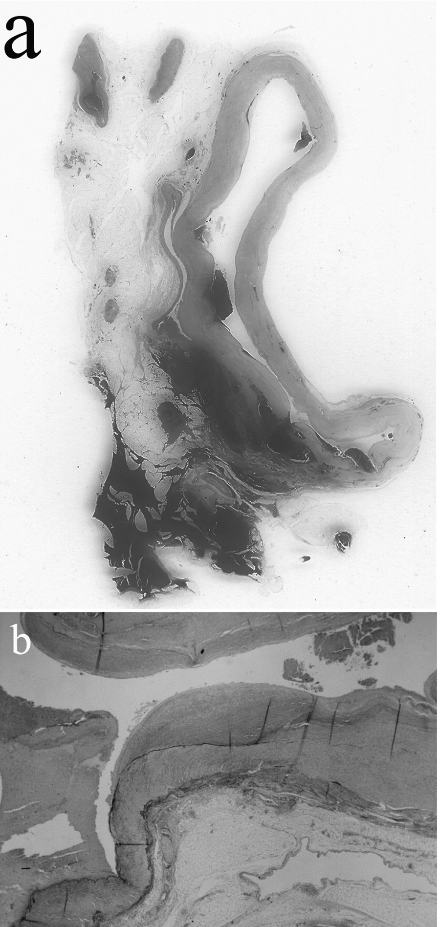 Cross section of the splenic artery aneurysm (a; H&E staining) and destruction of the internal elastic lamina (b; EVG staining, objective x2)