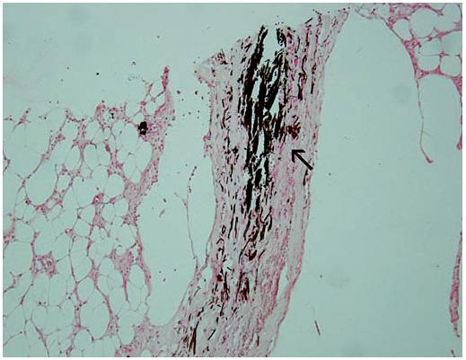 Histologický nález Šipkou označeno ložisko kalcia (zvětšení 200krát, barvení podle Kossa).