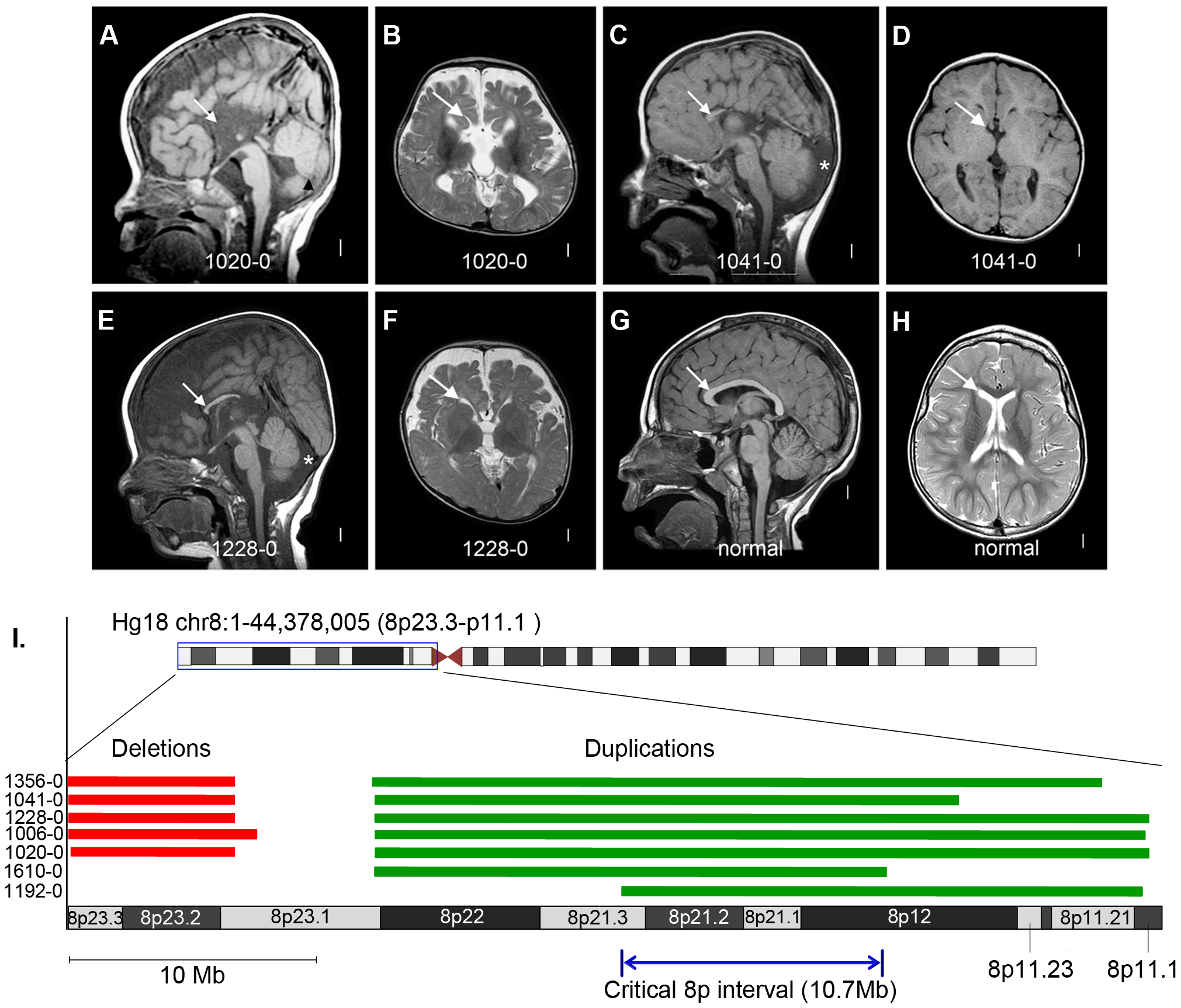 Brain magnetic resonance imaging and critical region analysis of the duplication-deletion 8p syndrome.