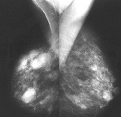 Nefrocystický snímek prsů: 55letá pacientka před léčbou tibolonem (1/2005).