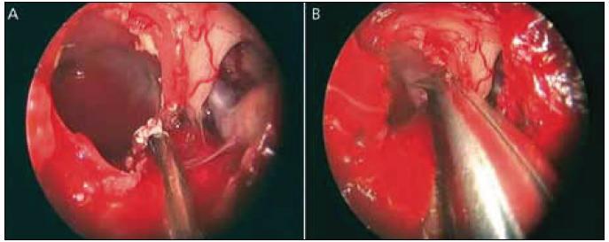 Obr. 2a, b) Preparace pouzdra kraniofaryngeomu od chiazmatu a optického traktu.