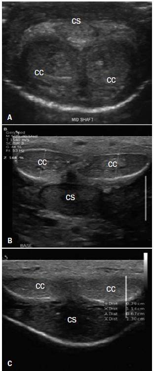 A. Normální levostranná a pravostranná corpora cavernosa (CC) a corpus spongiosum (CS) uprostřed těla penisu zobrazené pomocí sondy na ventrální straně ochablého penisu. B. Dorzální strana ochablého penisu na úrovni báze a C. ve střední části těla penisu.