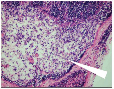 Metastáza karcinomu žaludku v lymfatické uzlině (označena šipkou). Optická mikroskopie, zvětšení 200x, barvení hematoxylin-eosin. S laskavým svolením prof. MUDr. R. Kodeta, CSc., přednosty Ústavu patologie a molekulární medicíny 2. LF UK a FN Motol. Fig. 1. Gastric carcinoma mestastasis in a lymph node (arrow marked). Optic microscopy, enlargement 200x, hematoxylin-eosin staining. With kind approval by prof. MUDr. R. Kodet, CSc., Head of the Institute of Pathology and Molecular Medicine, 2nd Medical Faculty of the Charles University and Motol Faculty Hospital (LF UK and FN Motol).