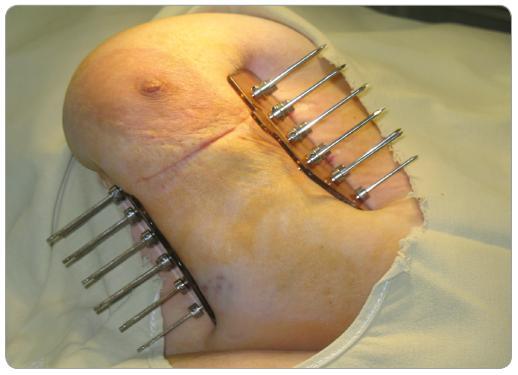 Trojrovinná intersticiálna brachyterapia pätnástimi kovovými ihlami.