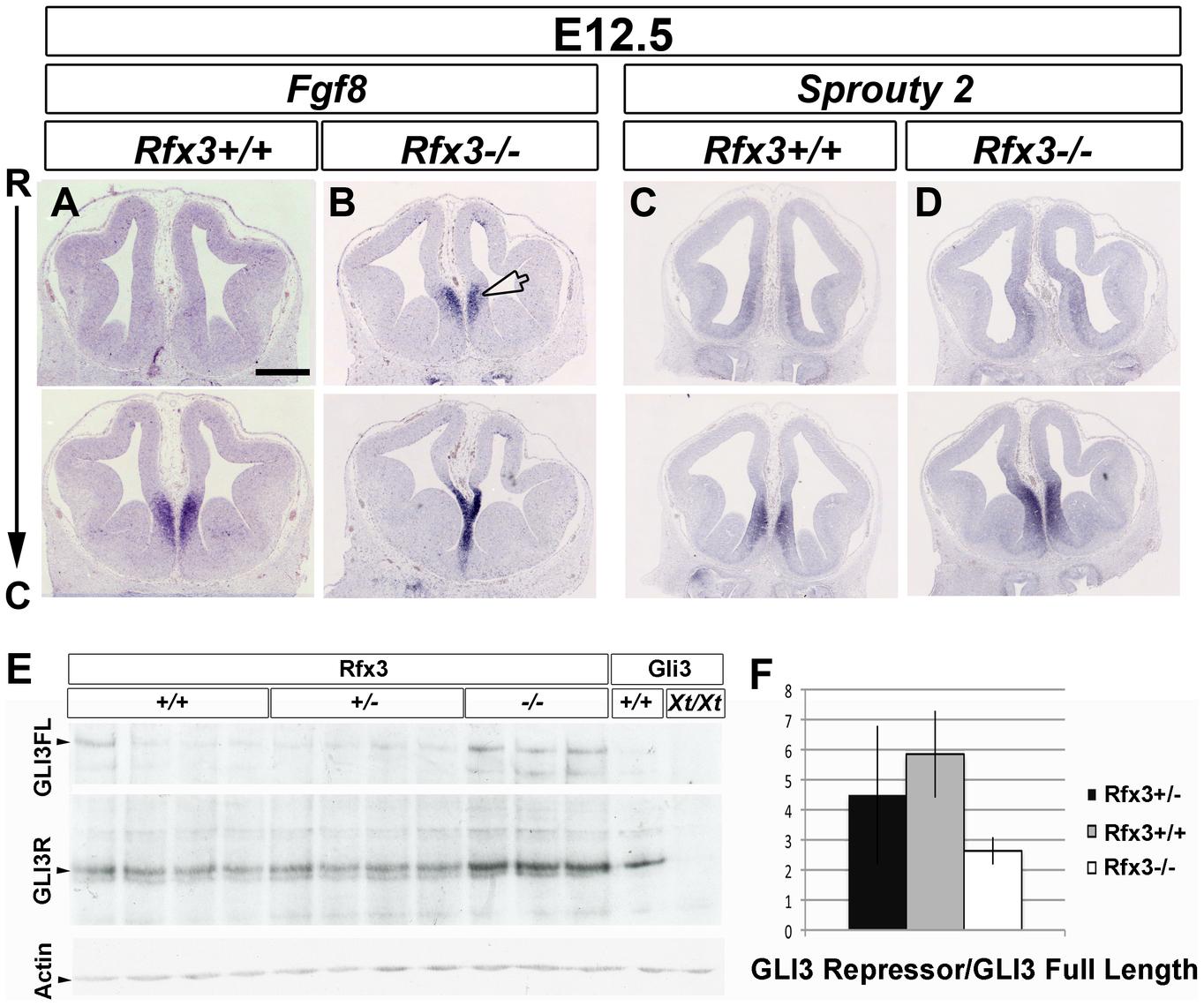 Disturbed expression of Fgf8 and of the ratio of GLI3 repressor/GLI3 activator forms in <i>Rfx3−/−</i> CSB.