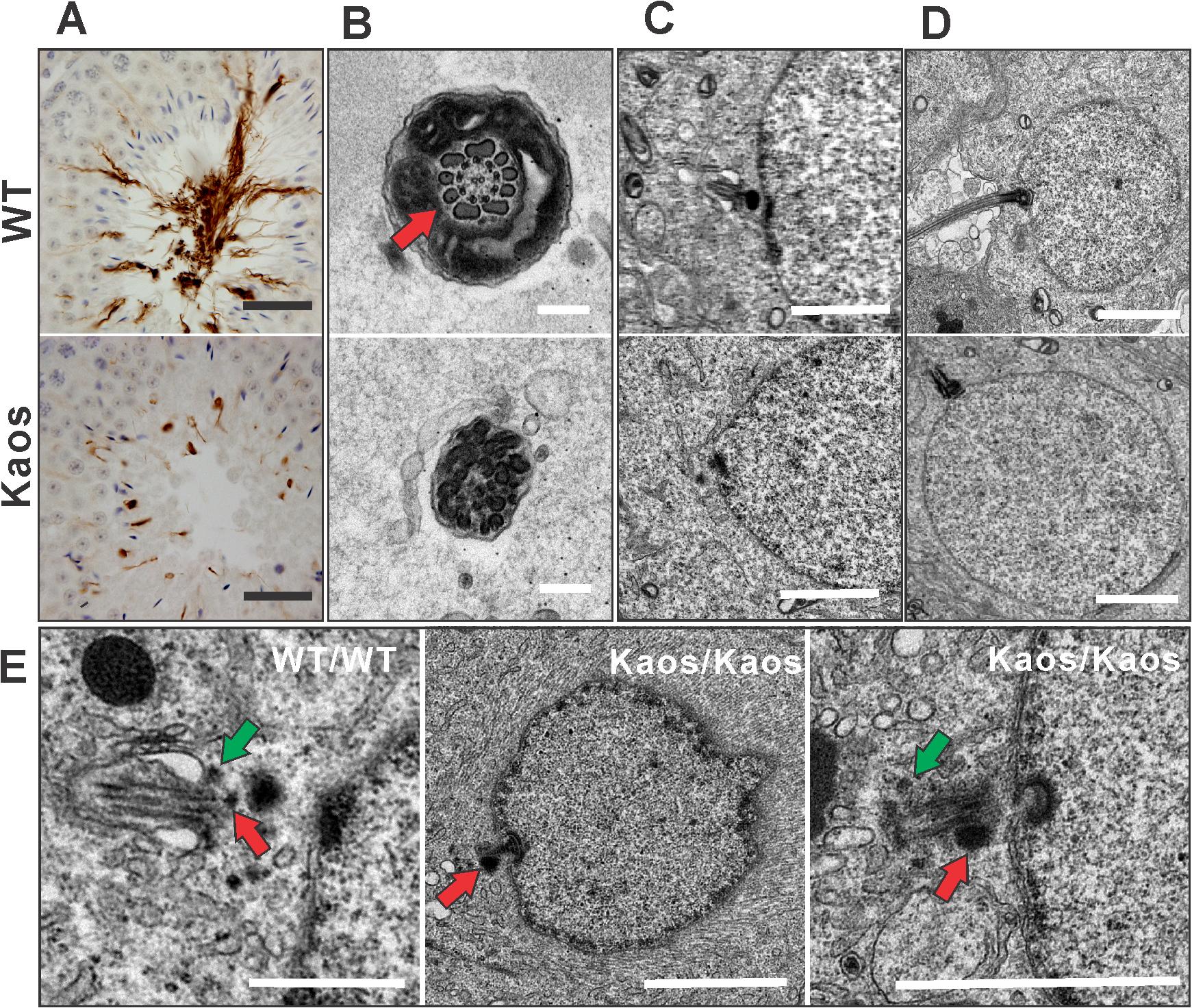 Axoneme defects in <i>Lrguk</i><sup><i>Kaos/Kaos</i></sup> mice.