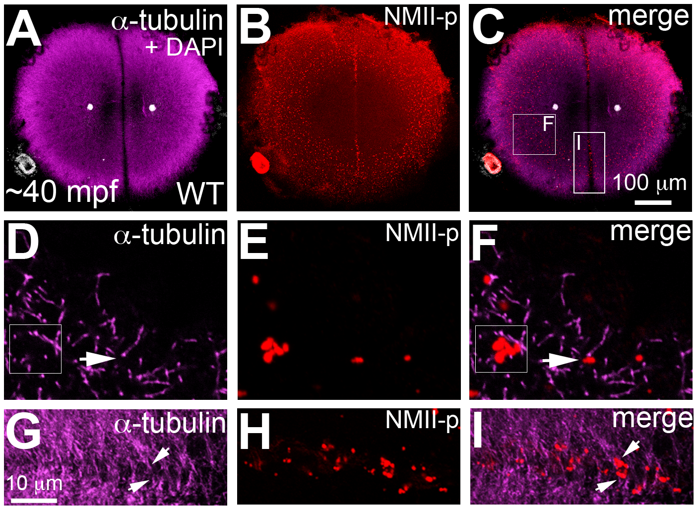 Germ plasm RNPs localize to the tips of astral microtubules.