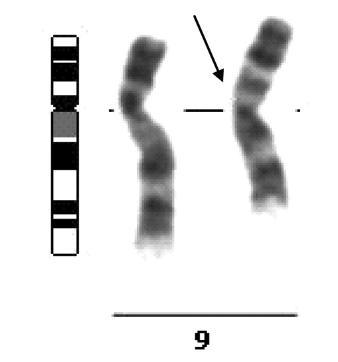 Inverze na 9. chromozomu, inv(9)(p12q13), jako zástupce heterochromatinových variant karyotypu