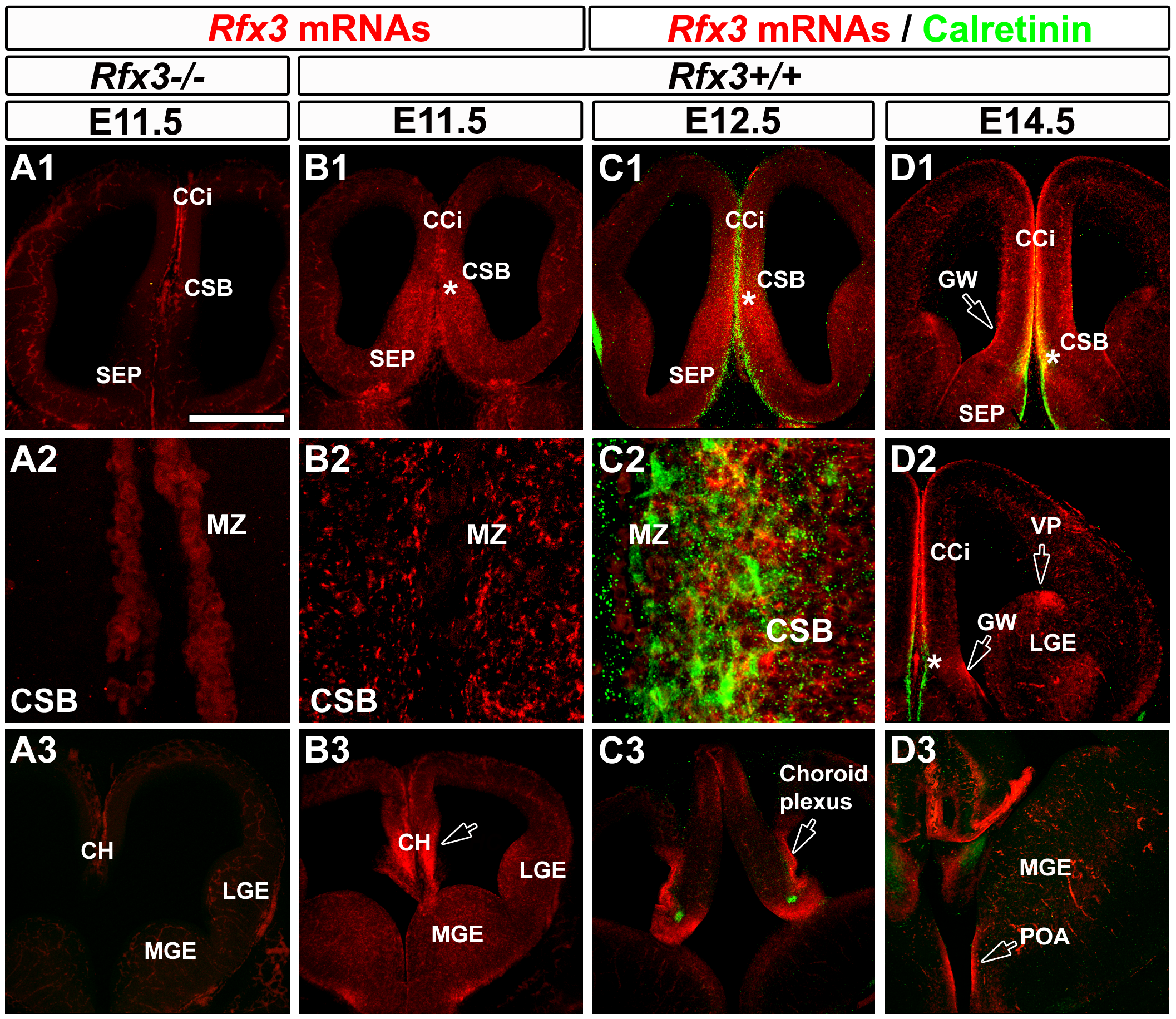 Expression pattern of <i>Rfx3</i> in the developing mouse telencephalon from E11.5 to E14.5.