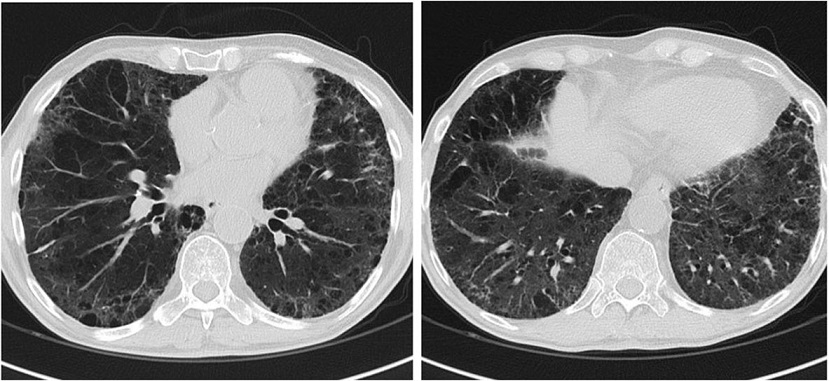Chest CT scan image obtained 1 month after the start of imatinib mesylate demonstrates resolution of ground-glass opacities and parenchymal consolidation