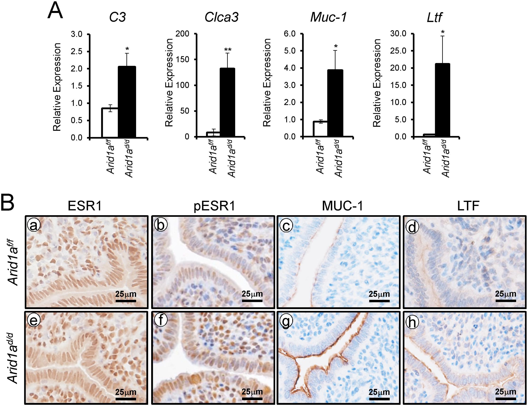 An increase of E2 signaling in <i>Arid1a</i><sup><i>d/d</i></sup> mice.
