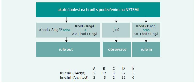 Schéma 2. 1hodinový protokol využití troponinu u pacientů s bolestmi na hrudi s podezřením na akutní infarkt myokardu bez elevací ST úseku (NSTEMI).