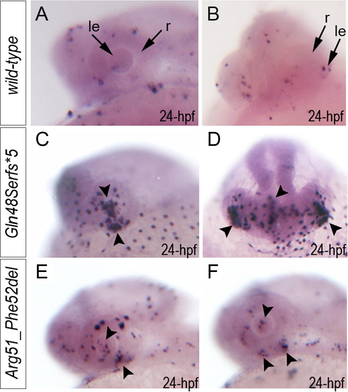 Summary of TUNEL assays in zebrafish wild-type and <i>mab21l2</i> mutant embryos.