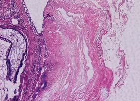 """Struktury teratomu, které v pravé polovině mají charakter """"epidermoidní"""" cysty, vlevo je zachycena tuková tkáň a sliznice připomínající respirační trakt. HE 200x."""