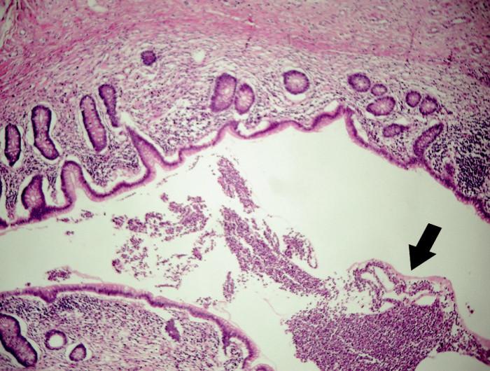 Obr. 3. Histopatologický obraz divertikulózy a divertikulitídy apendixu vermiformis, farbenie HE, zväčšenie: a) 4x b) 40x b) Detail lúmenu apendixu vyplnený hnisavým exudátom – čierna šípka Pic. 3. Histopathological image of diverticulosis and diverticulitis of appendix vermiformis, coloring HE, enlargement a) 4x b) 40x c) 4x d) 40x b) Detail of the appendical lumen filled with purulent exudate – black arrow