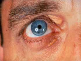 Arcus lipoides a xanthelasma palpebrae u FH (foto archiv autora)