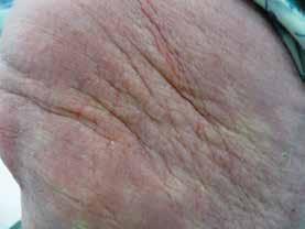 Struktura ztluštělé kůže pacientky se skleromyxedémem