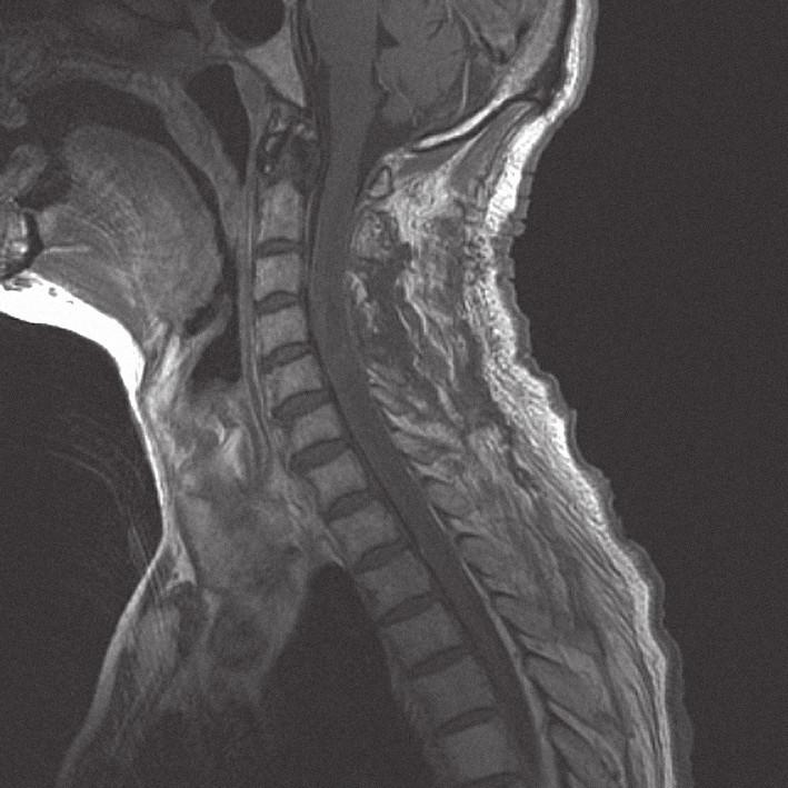 MRI krční páteře v sagitální rovině, v T1 módu s kontrastem, dva dny po operaci, bez známek tumoru.