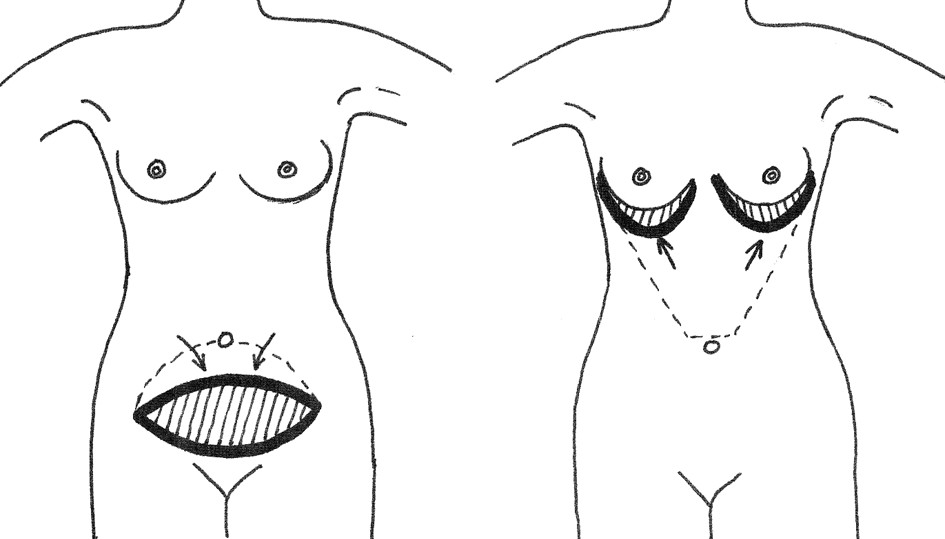 Fig. 1. Principles of the upper and lower abdominoplasty