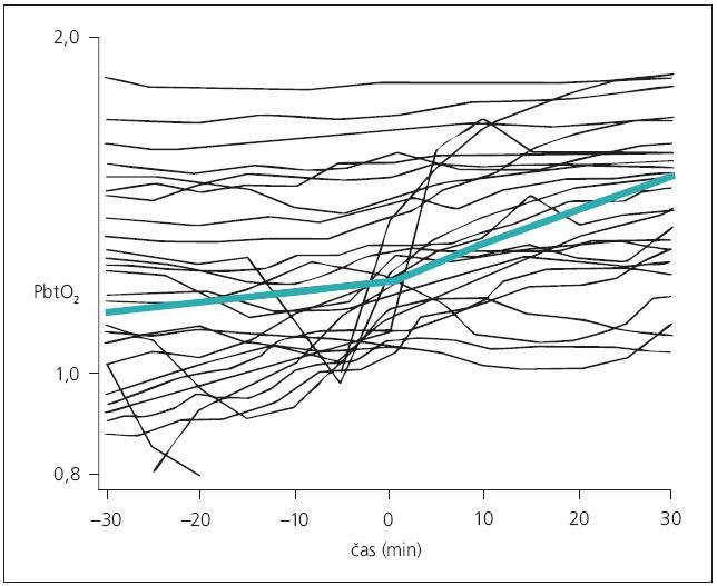 Lineární model (sv. zelená křivka) dynamiky PbtO<sub>2</sub> v průběhu zvyšování MAP (čas 0). Při zvyšování MAP po definitivním ošetření aneuryzmatu dochází k nárůstu PbtO<sub>2</sub> spíše u pacientů s nižšími vstupními hladinami PbtO<sub>2</sub>, zatímco u pacientů s vyššími hladinami k výraznému nárůstu nedochází. U celého souboru dynamika změn hladin PbtO<sub>2</sub> není statisticky významná.