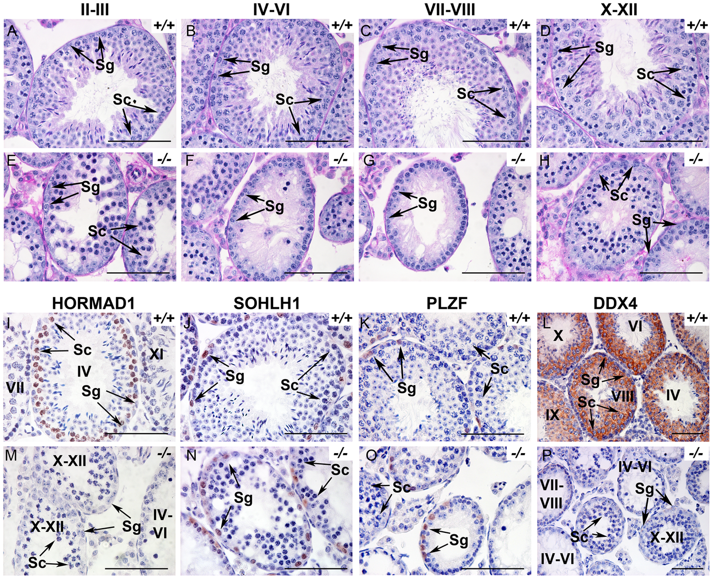 HORMAD1 is required for spermatogenesis.