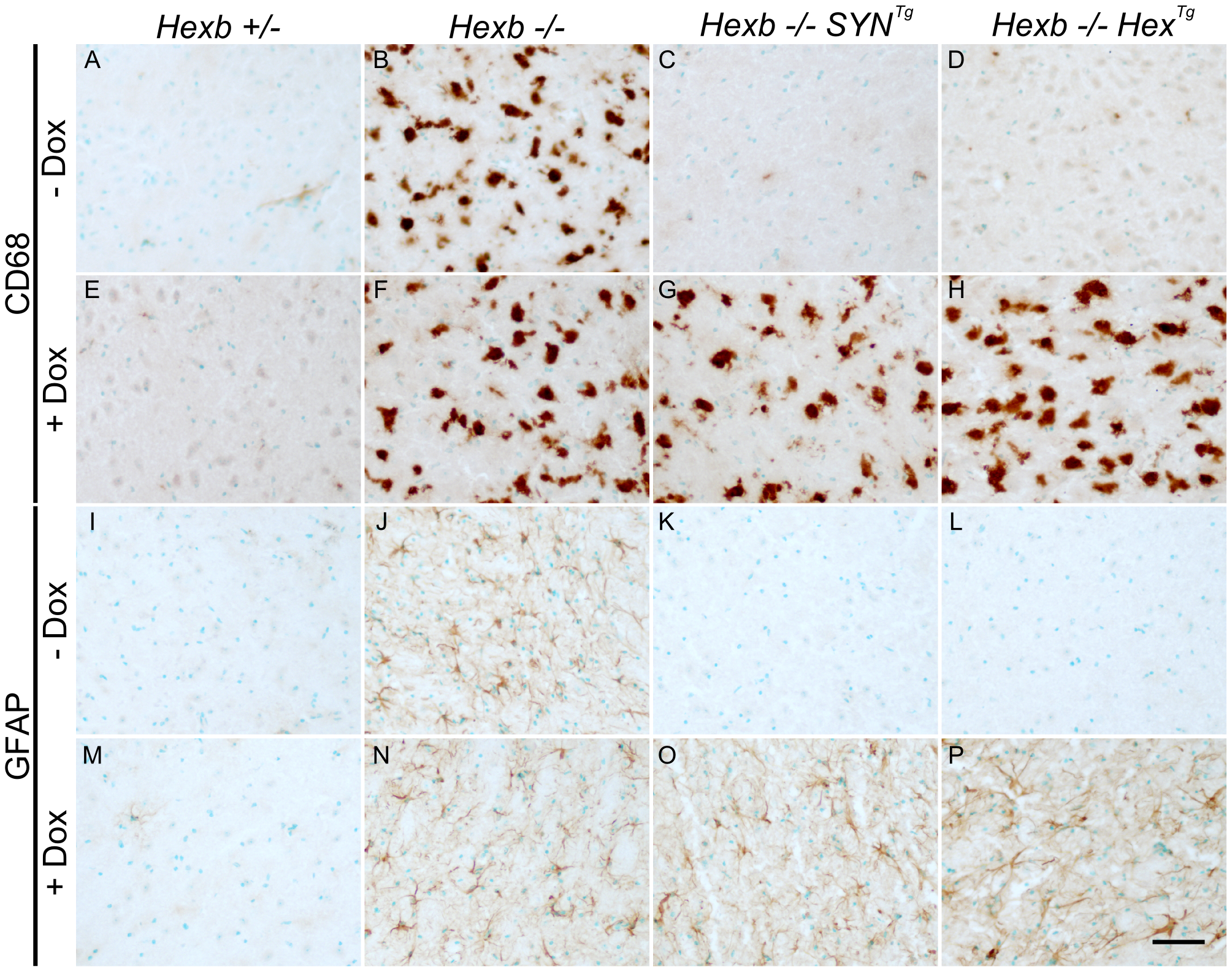Induction of neuroinflammation by doxycycline-mediated suppression of transgenic <i>Hexb</i>.