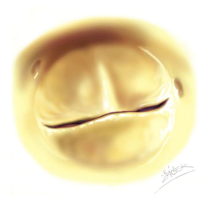 Obrázek bikuspidální aortální chlopně. Na předním cípu, který prolabuje, je přítomno raphe.