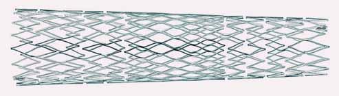 Tzv. hybridní typ stentu, který kombinuje otevřené buňky na okrajích stentu s uzavřenými buňkami uprostřed, čímž se docílí lepšího pokrytí aterosklerotického plátu.