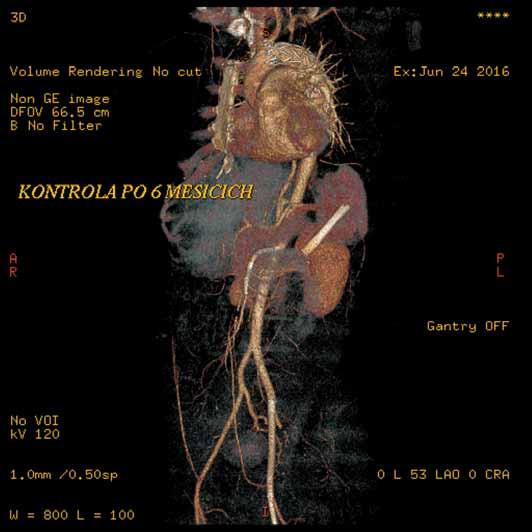 Přehledná CT angiografie po šesti měsících od výkonu zobrazující úspěšnou implantaci stentgraftu u disekce aorty typu B. Je patrné dobré plnění pravého lumen ve všech úrovních, falešné lumen se plní jen v malém okrsku kolem dolního konce stentgraftu, funkční stenty zavedené do AMS, pravé renální tepny i ilického a femorálního řečiště vlevo.
