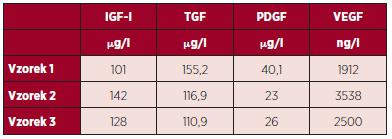 Výsledky měření hladiny vybraných destičkových faktorů v DL po smíchání, tepelné defibrinaci, inaktivaci komplementu a inaktivaci patogenů.