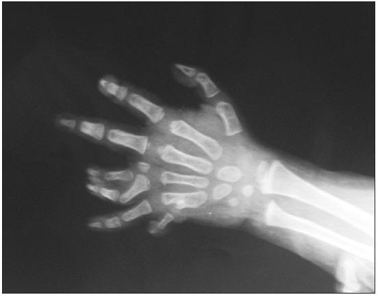 Fig. 2. Preoperative radiography of the polysyndactyly patient