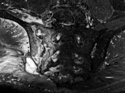 Infekčná sakroiliitída. Rozsiahly hyperintezívny signál v STIR sekvencii v oblasti pravého SI kĺbu, presahujúci anatomické hranice, šíriaci sa do okolitých mäkkých tkanív s rozvojom abscesu, rozsiahle uzurácie artikulárnych plôch SI kĺbu. Archív autora